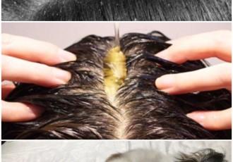 痒い 頭皮 が